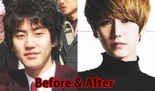 10 Shocking Korean Idol Plastic Surgery Transformations