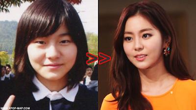 10 Shocking Korean Idol Plastic Surgery Transformations