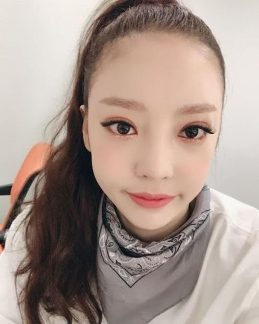 Goo Hara's Latest Plastic Surgery Has Netizens Criticizing Her