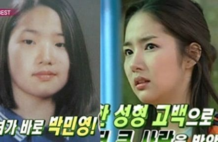 Female K-Pop Stars Who Weren't Afraid To Reveal They Had Cosmetic Surgery