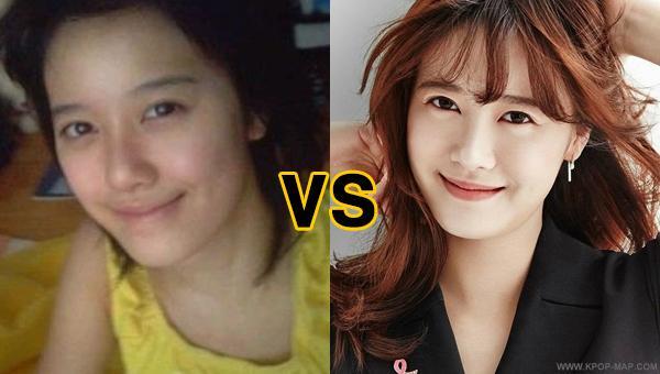 Korean Actress No Makeup Saubhaya