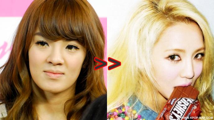 hyoyeon-plastic-surgery.png